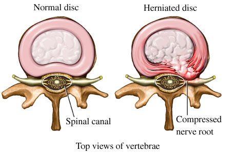 tratament hernie de disc l5 s1
