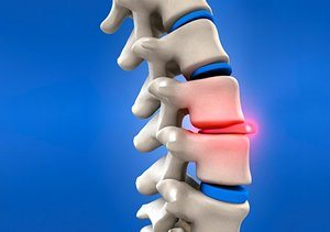 Cincinnati Slipped Disc Relief at Baker Chiropractic and Wellness
