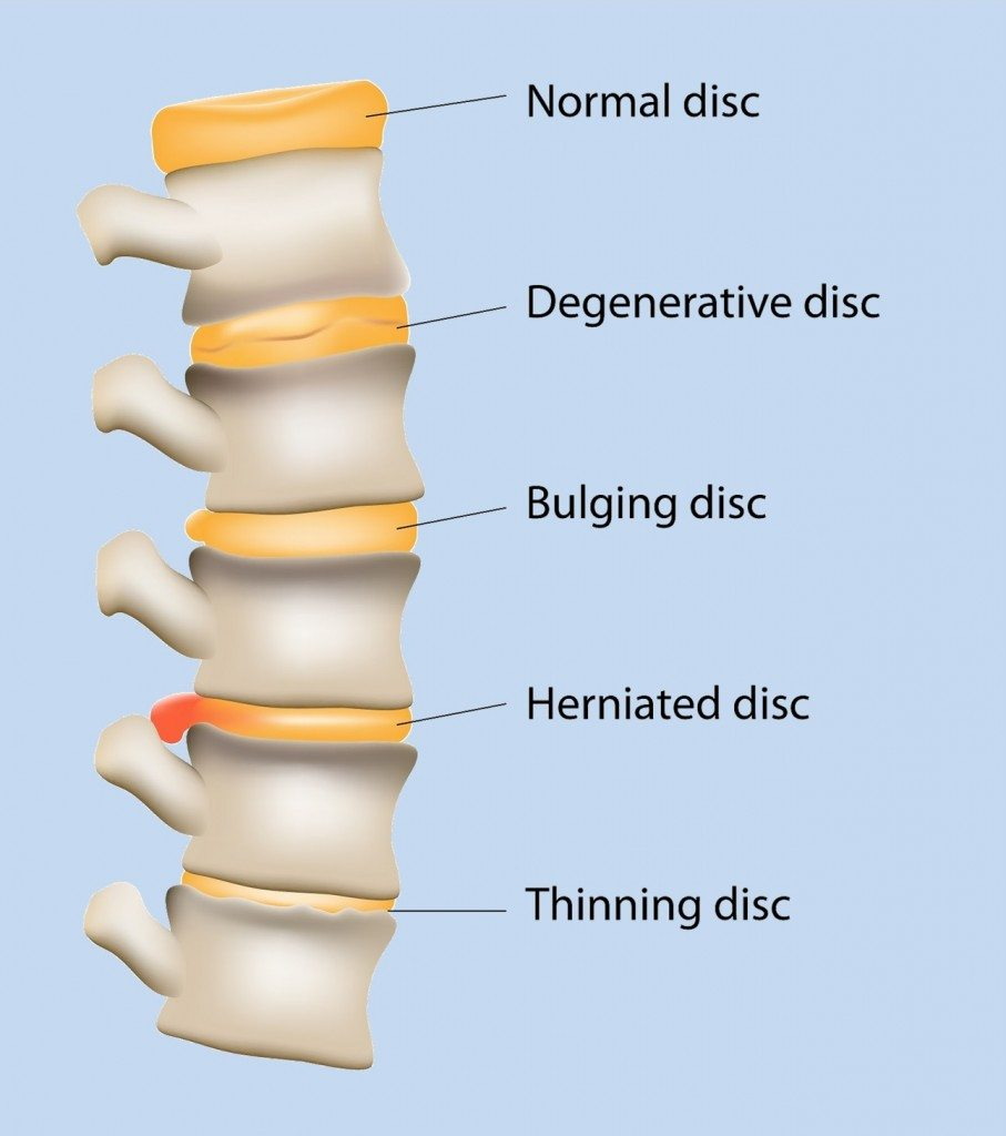 degenerative disc disease pain relief