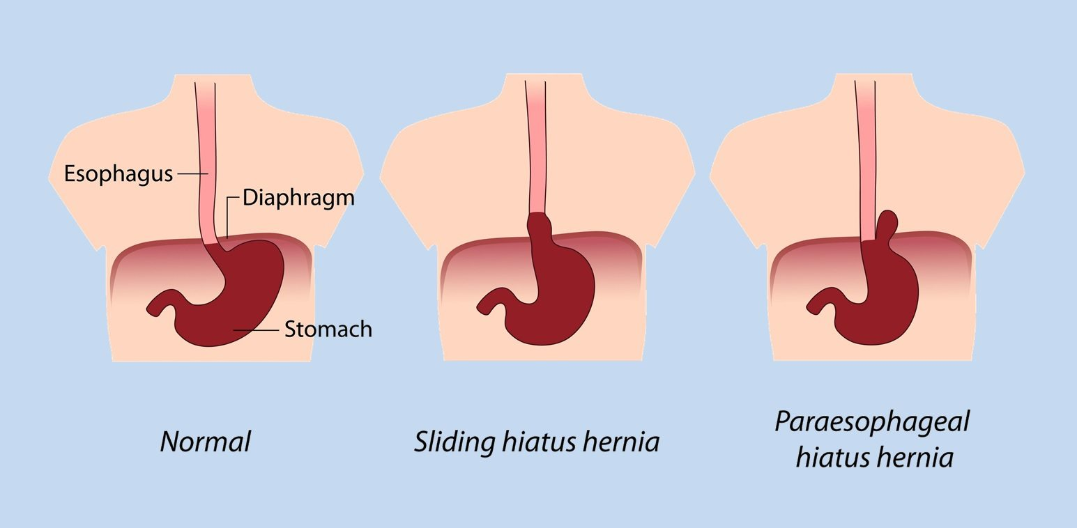 cincinnati ohio hiatal hernia relief | symptoms | hiatus, Human Body